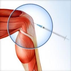 lesion-articular-3